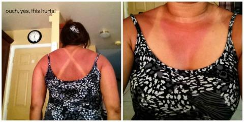 sunburn1